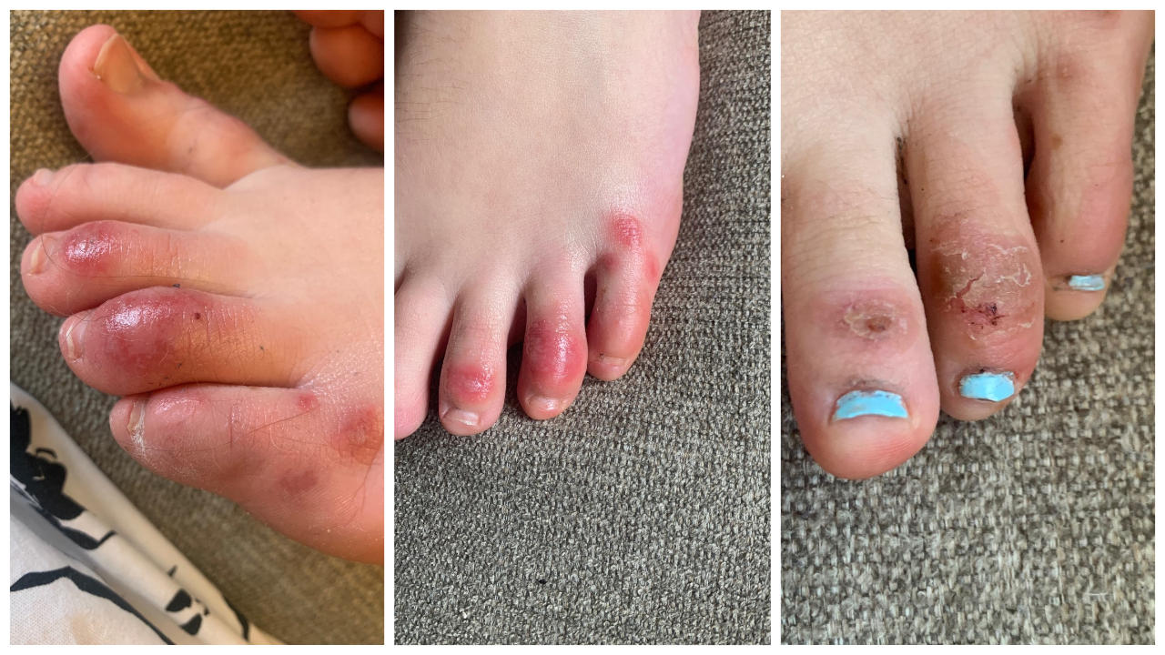 Covid Toes Other Skin Rashes Are The Latest Possible Rare Coronavirus Signs Pennlive Com