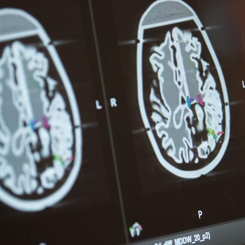 El Covid-19 altera el volumen de materia gris en el cerebro, según un  estudio - La Tercera