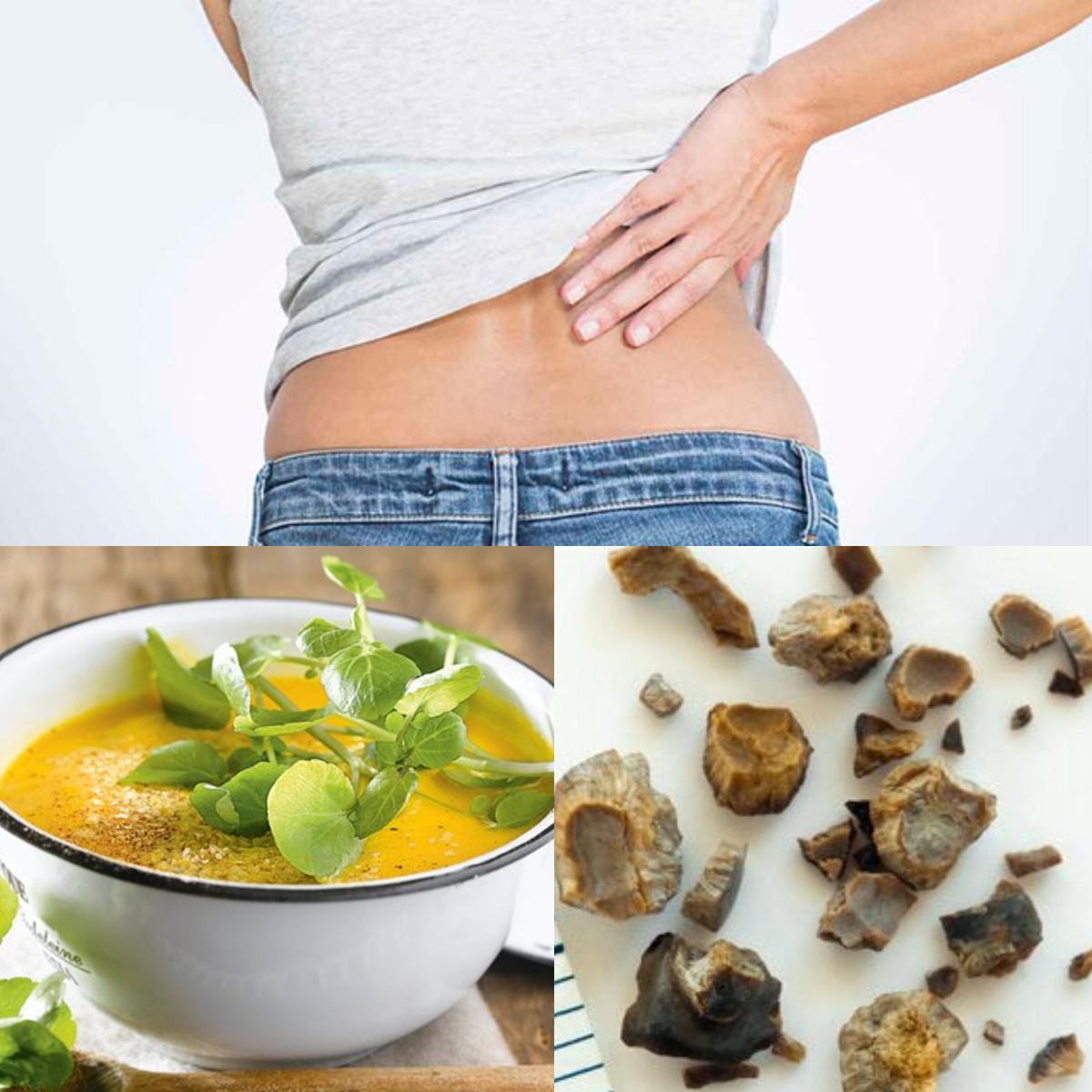 Dieta Para Eliminar Piedras En Los Riñones Consejos Y Ejemplos De Menús Salud La Revista El Universo