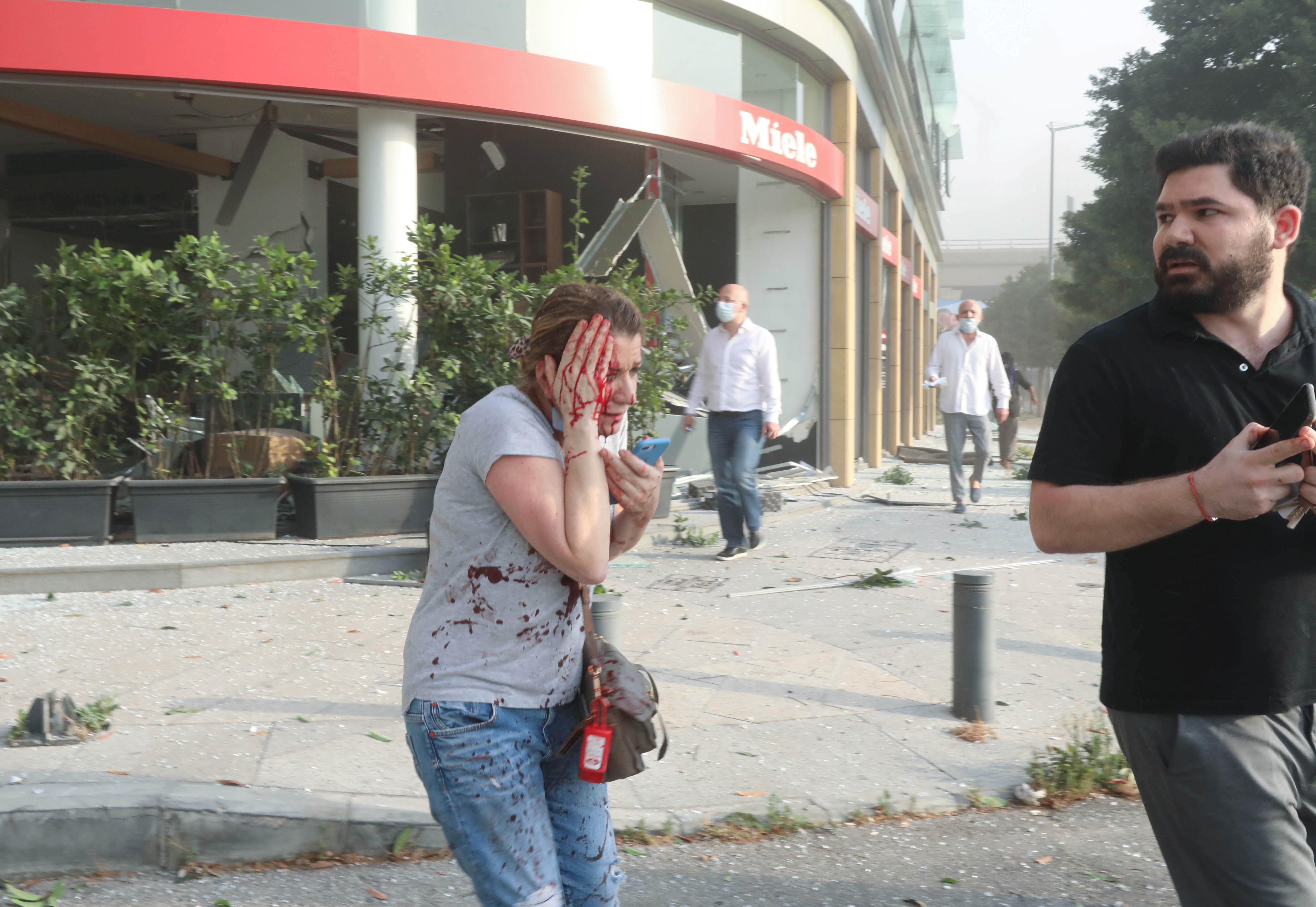 Una mujer herida es vista después de la explosión en Beirut, Líbano, el 4 de agosto de 2020 (Reuters/ Mohamed Azakir)