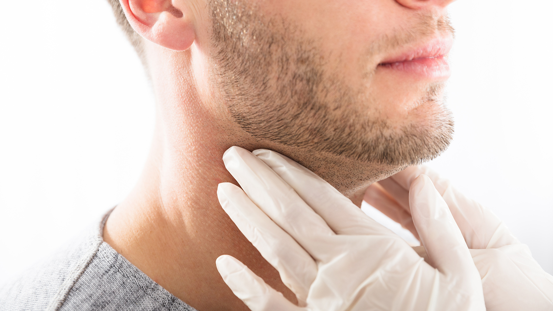 Hipotiroidismo, hipertiroidismo o nódulos en la tiroides: ¿son factores de  riesgo para el COVID-19? - Infobae
