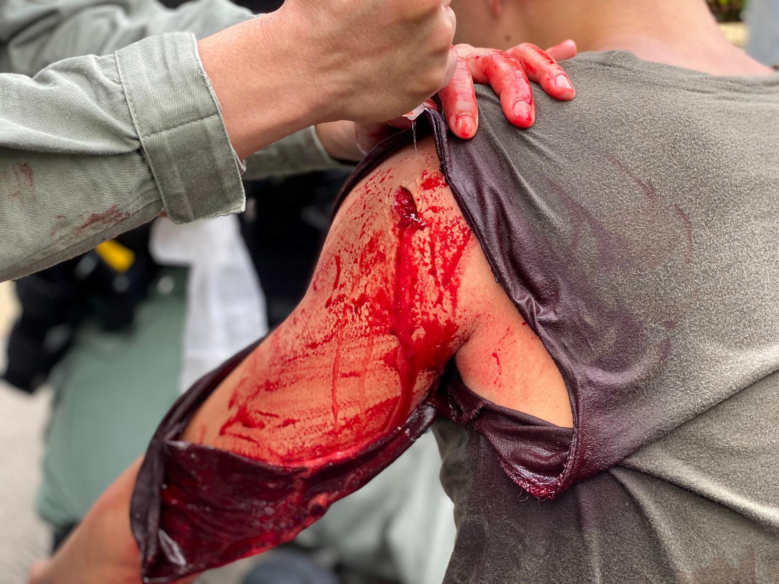 La policía divulgó la foto de un agente herido durante las manifestaciones