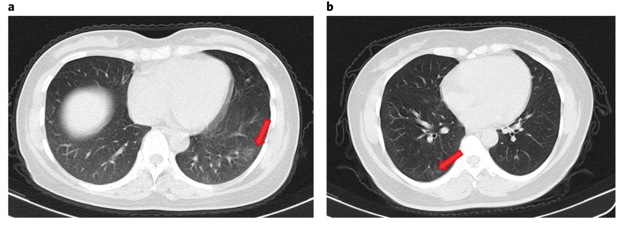 """TC de tórax de dos pacientes asintomáticos (""""Clinical and immunological assessment of asymptomatic SARS-CoV-2 infections"""")"""