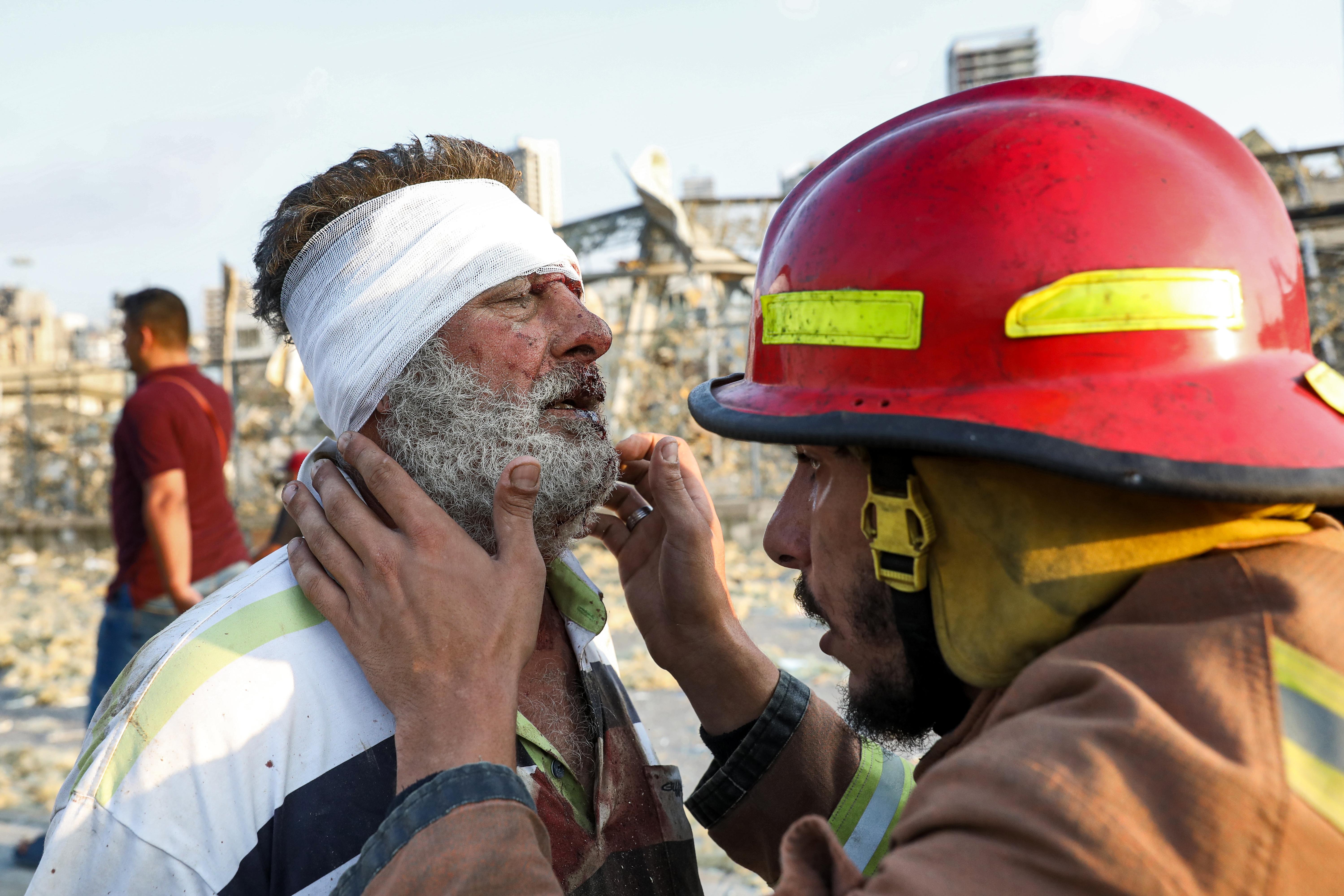 Un hombre herido en la explosión (Anwar Amro/ AFP)