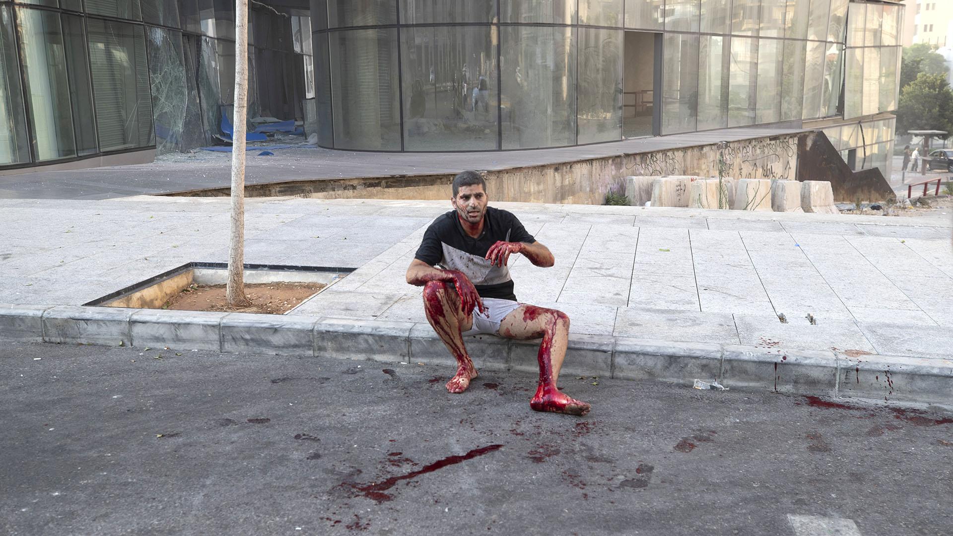 Los testigos reportan que muchas personas resultaron heridas por los vidrios que estallaron con la explosión (AP)