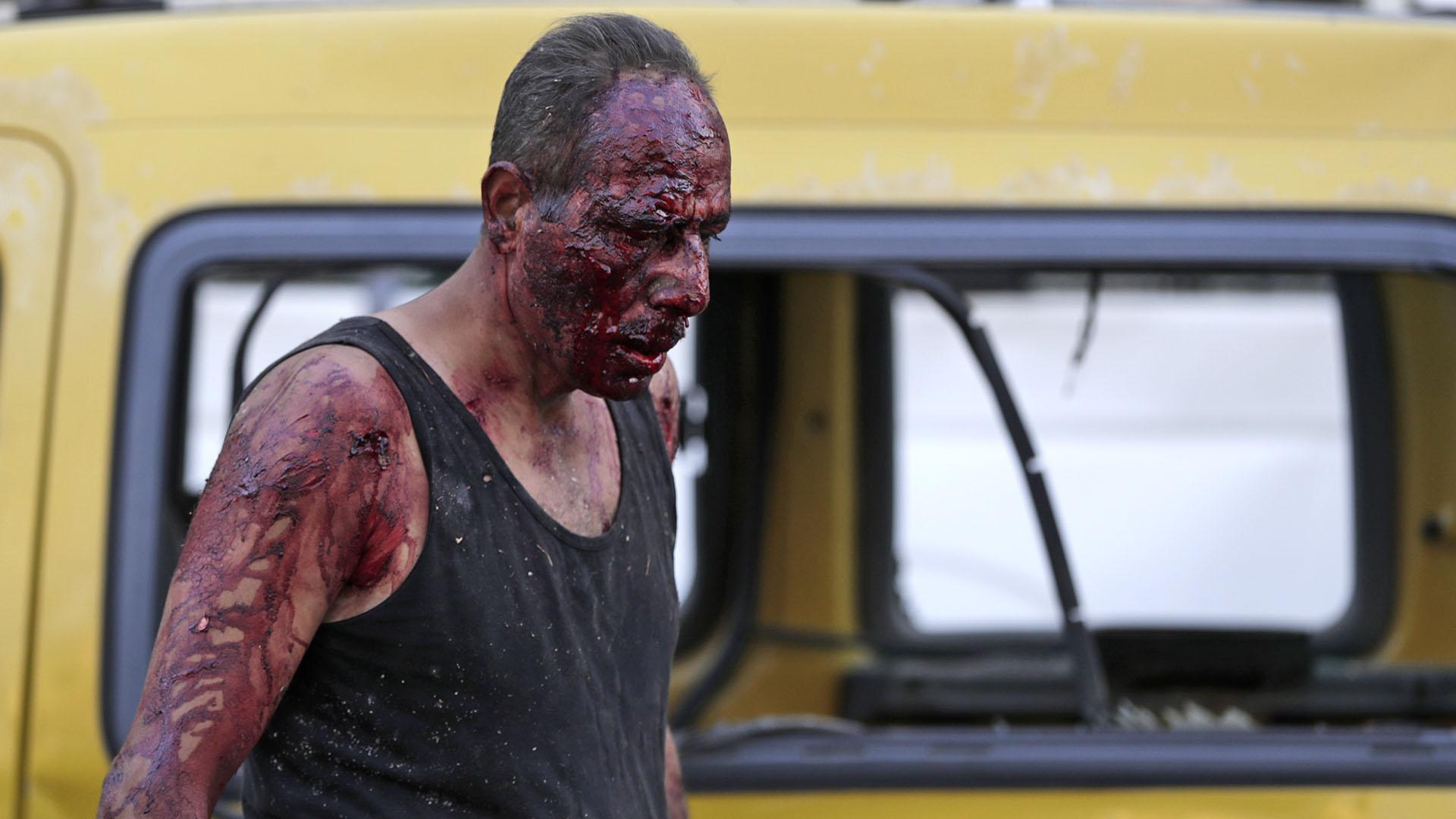 Uno de los sobrevivientes, con heridas sangrantes en todo el cuerpo (AFP)