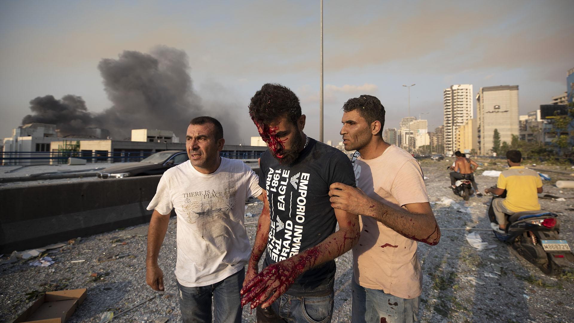 La gente ayuda a un hombre herido en la explosión en Beirut (Foto AP/ Hassan Ammar)