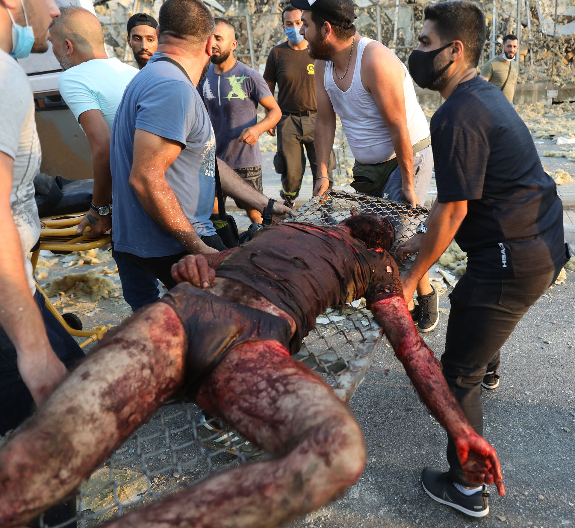 El hombre es trasladado a un hospital para ser atendido (Foto de Anwar Amro/ AFP)