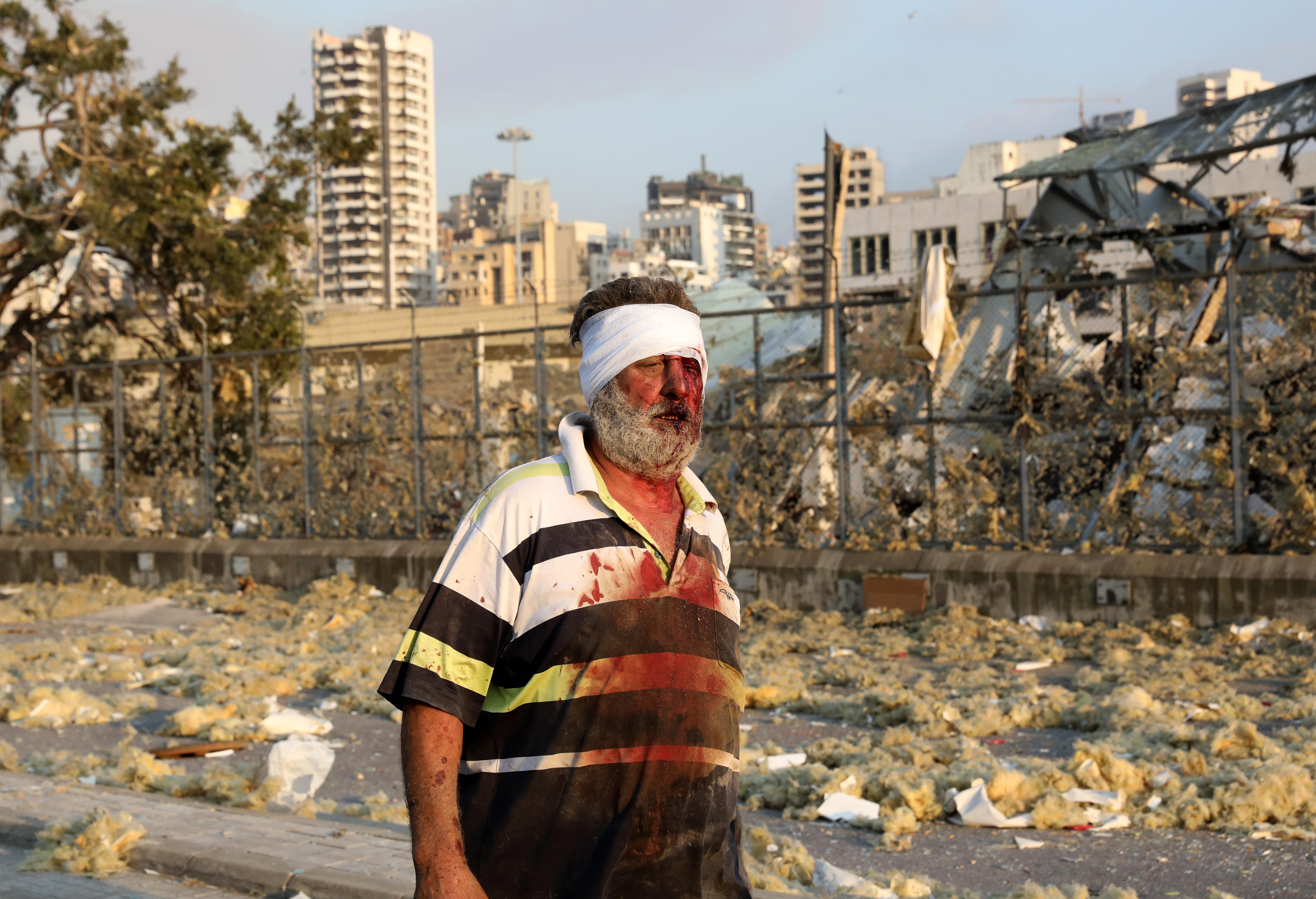 Los primeros reportes hablaban de decenas de heridos, pero luego las estimaciones pasaron a ser de cientos (Anwar Amro/ AFP)