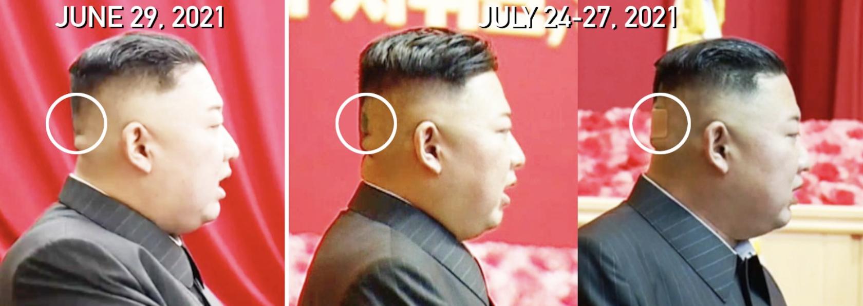 Kim se cubrió a veces con una venda color crudo para disimular la marca. Foto: NK News