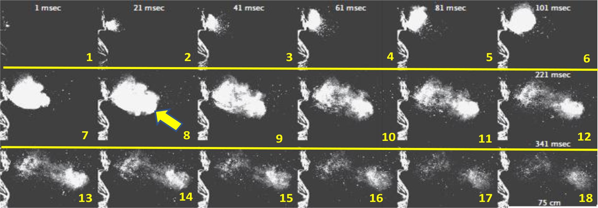 Estornudo con 1000 f/s. En estos 18 cuadros 20 mseg de diferencia se observa el desarrollo de la gran Nube de Gas Turbulenta que atrapa el aire ambiente. Se observa en cuadrados 3, 4 y 5 el comienzo de la Nube de Gas Turbulenta, y en los nro. 6, 7, 8 y 9 su expansión. En los cuadrados finales el inicio de la dispersión, con ya deshidratación de las microgotas con diferentes tamaños. (A Sneeze. Lydia Bourouiba, N Engl J Med 2016; 375:e15 DOI: 10.1056)