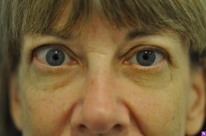 Oregon Eye Patient To Testify Need For New Drug To Fda Opb