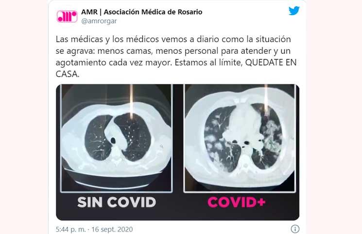 El duro video sobre cómo el coronavirus afecta a los pulmones