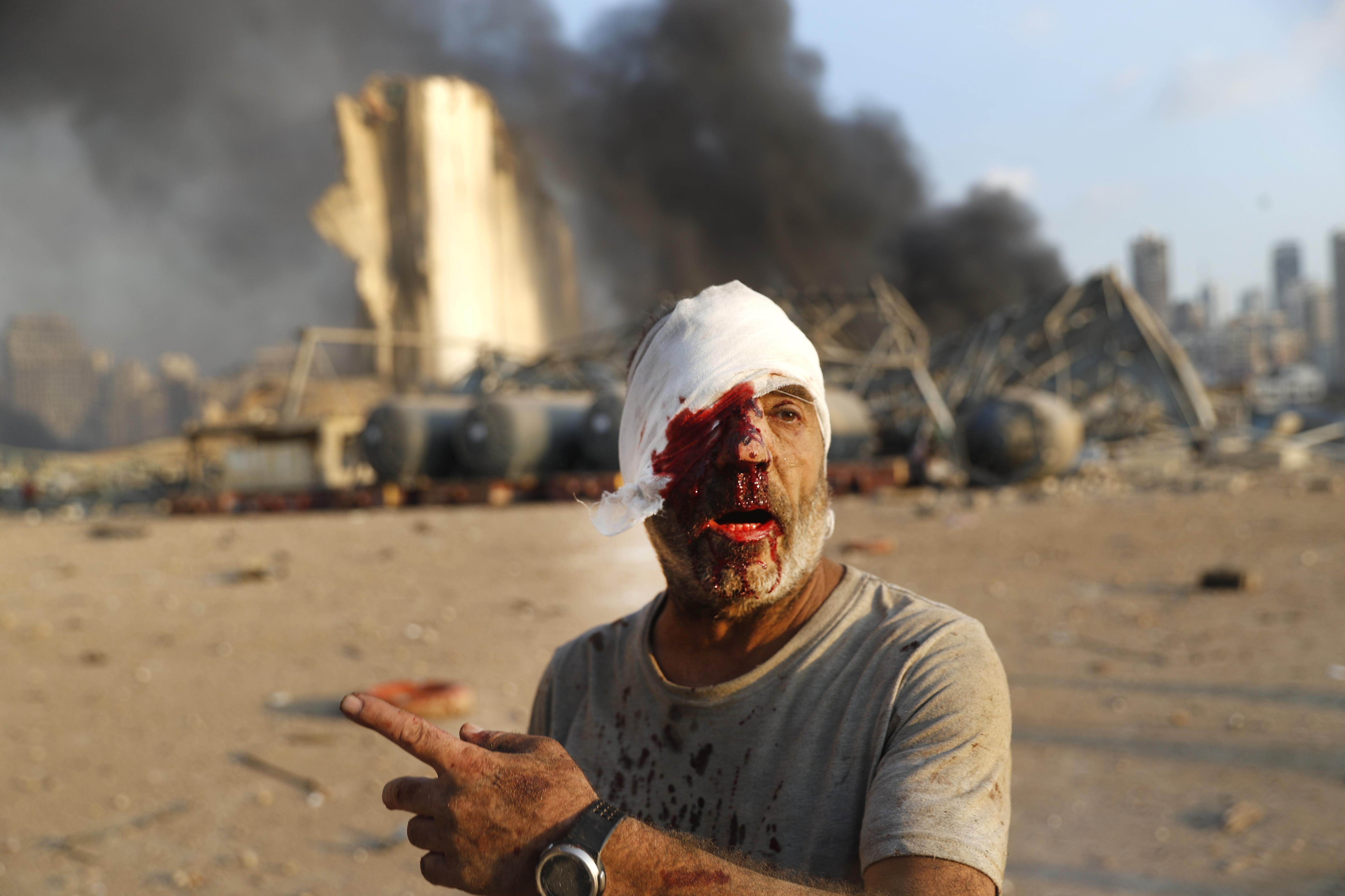 Yaralı bir adam Salı günü Beyrut, Lübnan'da limana vuran patlama mahallinde yürüyor.  [HUSSEIN MALLA |  AP]
